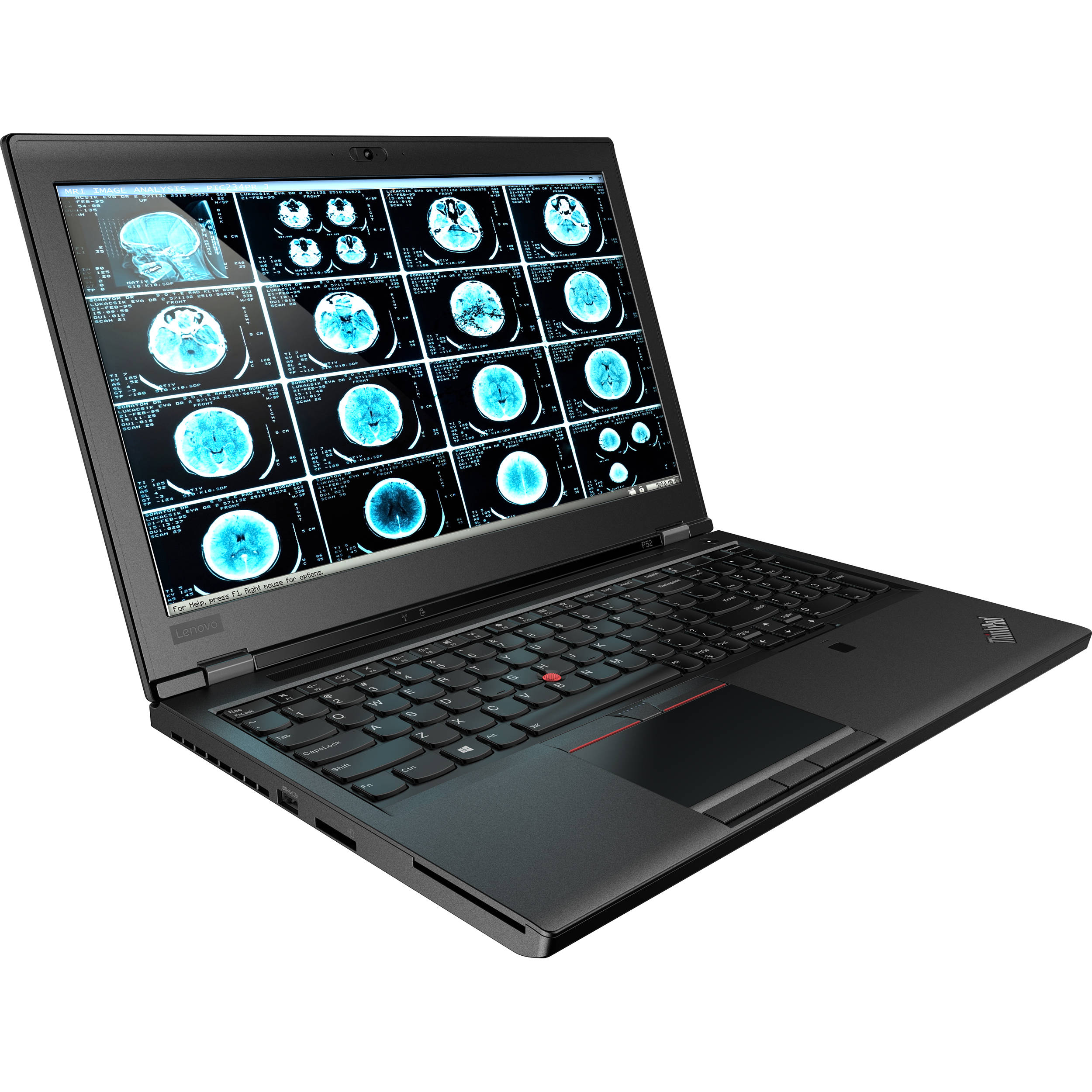 Notebook Lenovo ThinkPad P52 15.6 Full HD Intel Core i7-8750H Quadro P1000M-4GB RAM 16GB HDD 1TB + SSD 512GB Windows 10 Pro